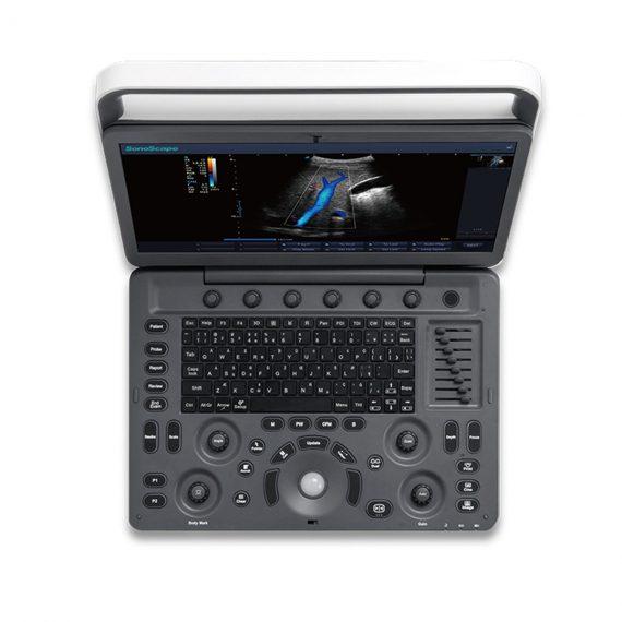 portable ultrasound machine