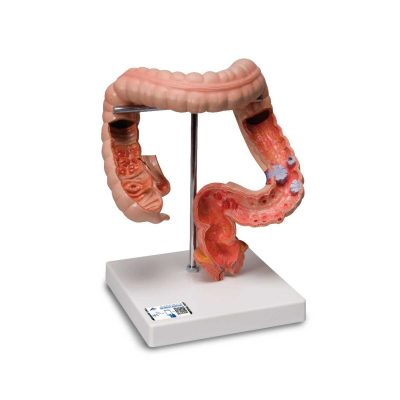 Intestinal Diseases Model - 3B Smart Anatomy