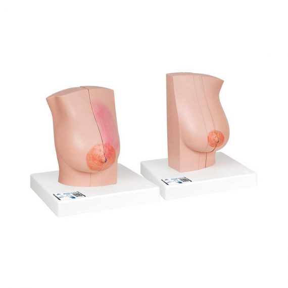 Model of Female Breast with Healthy & Unhealthy Tissue - 3B Smart Anatomy