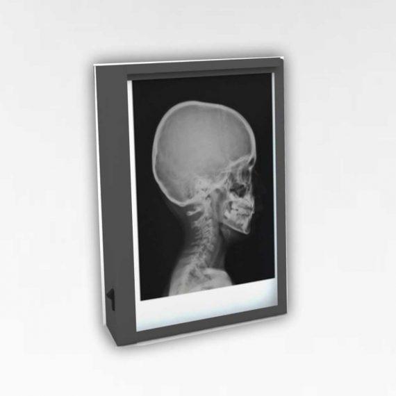 Single X-ray Viewing Box