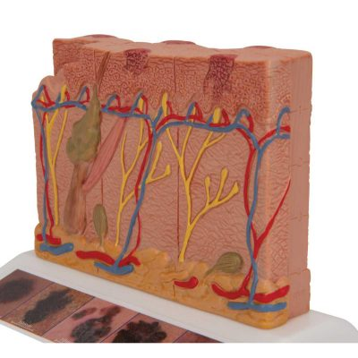 Skin Cancer Model with 5 stages, 8 times magnified - 3B Smart Anatomy......